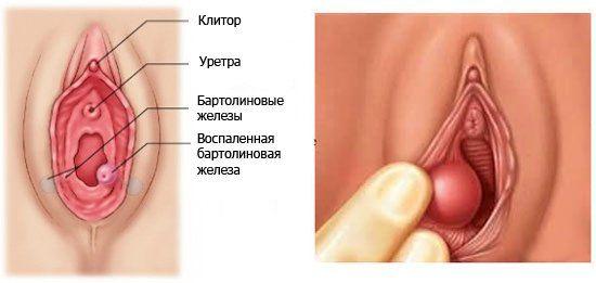 причины бартолинита