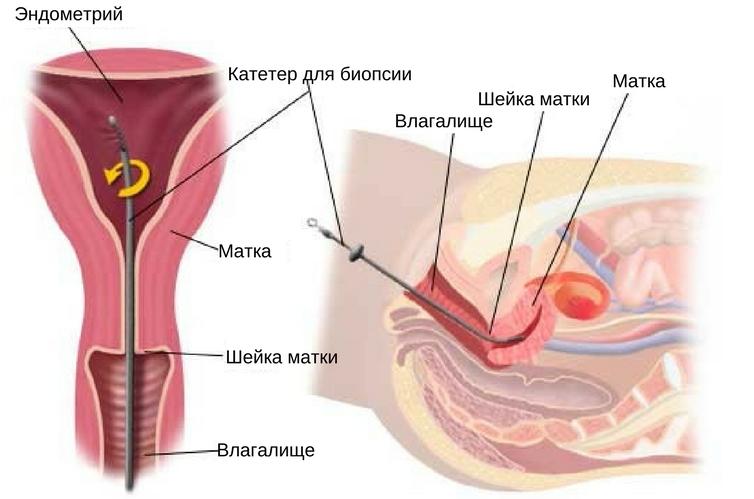 аутоиммунный эндометрит