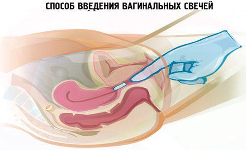 преимущества вагинальных свечей в лечении гинекологической патологии