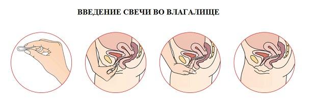 свечи при эндометрите
