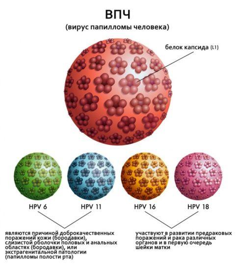 причины развития остроконечной кондиломы