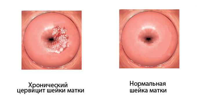 хроничексий цервицит