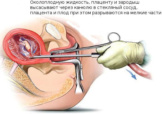 Первая менструация после аборта