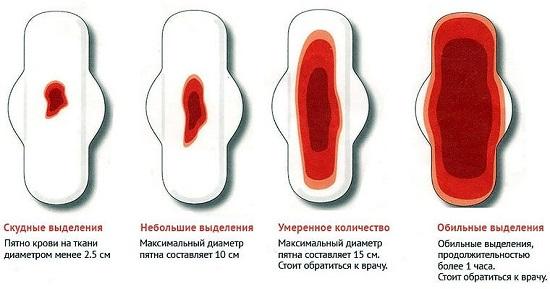 кровотечение между месячными