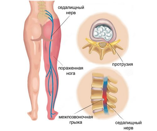 при месячных болит живот справа