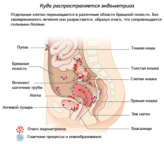 Менструация при Визанне