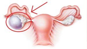 Месячные при кисте яичника