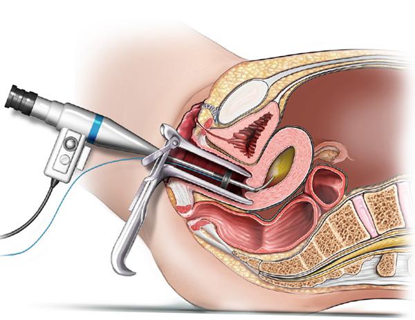 Короткая менструация
