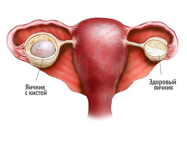 киста яичника-1