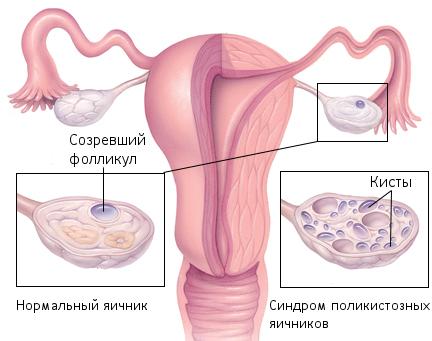 Восстановить месячные без гормонов