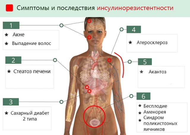 лечение поликистоза