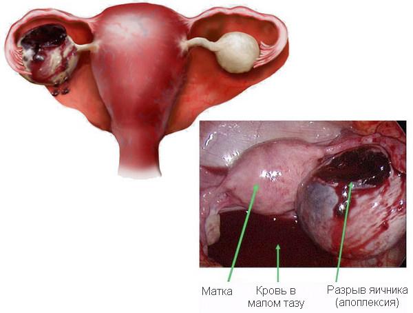 Месячные после апоплексии яичника