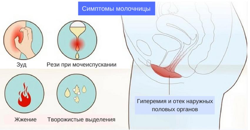 молочница при месячных