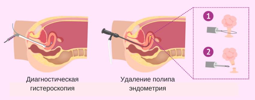 Последствия гистероскопии при удалении полипа эндометрия
