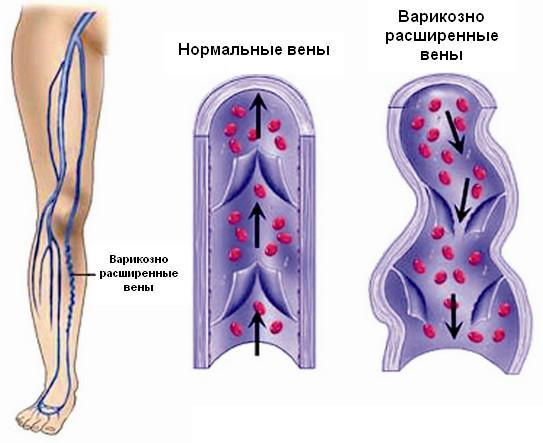 Уколы прогестерона для вызова месячных