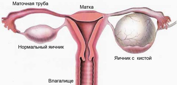 можно ли перепутать кисту с беременностьб