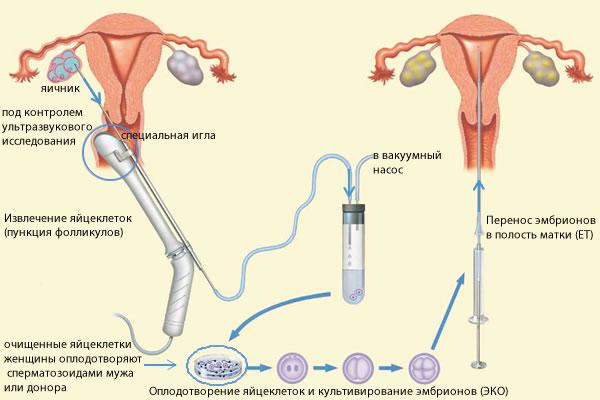 беременность при аденомиозе