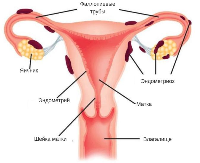 Температура при эндометриозе