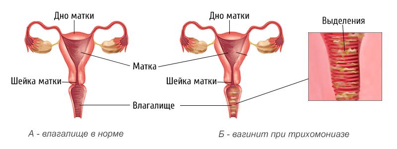 кольпит при беременности