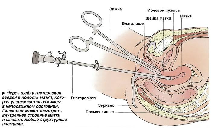 эндометриоз после родов