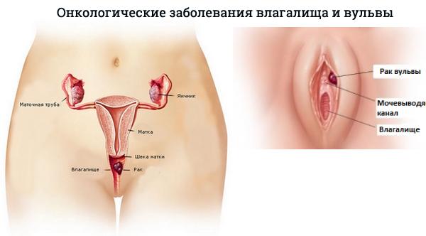 Киста бартолиновой железы без операции
