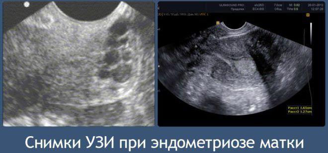 Когда делать УЗИ при эндометриозе