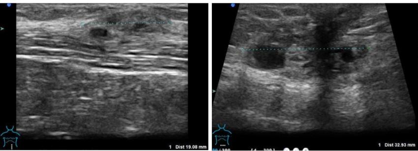 эндометриоз на рубце после родов