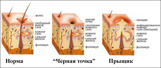 Чистка лица во время месячных