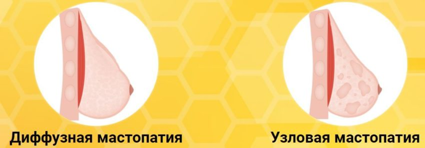 """""""Тайм Фактор"""" при месячных"""