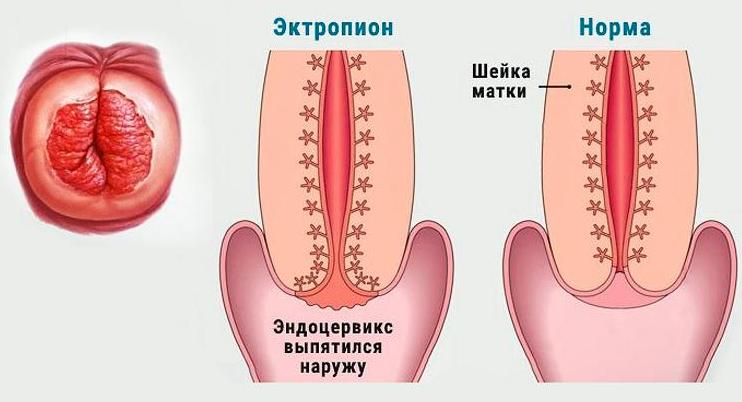 эктропион шейки матки