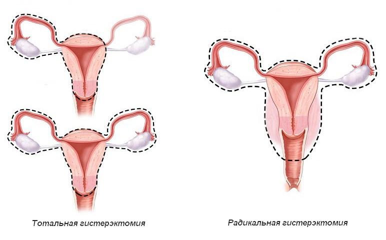 Удаление матки при эндометриозе