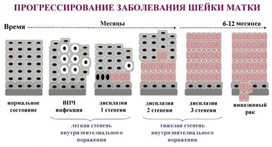 лечение дисплазии народными методами