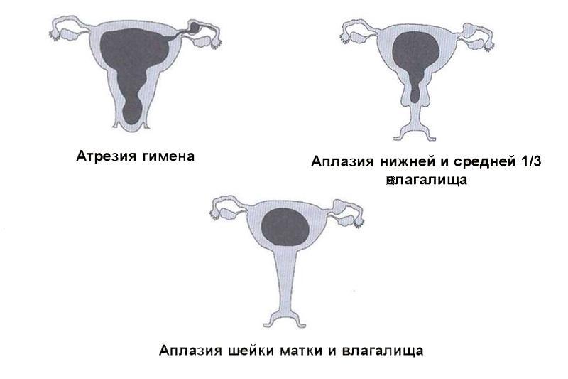 Половое созревание у девочек