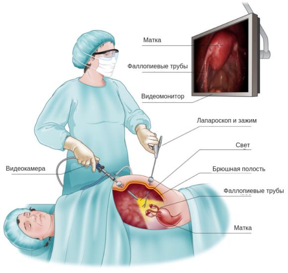 Эндометриоз после лапароскопии