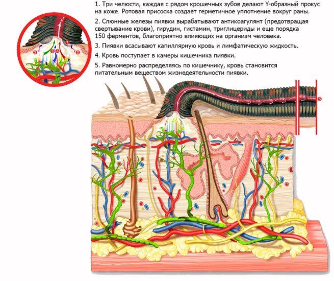 Физиолечение при эндометриозе