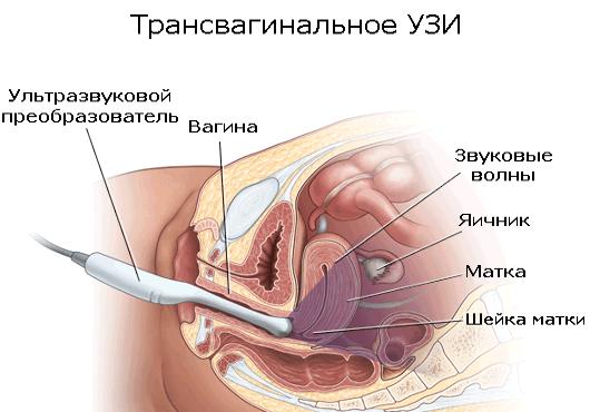Пункция кисты яичника