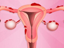 удаление эндометриоза