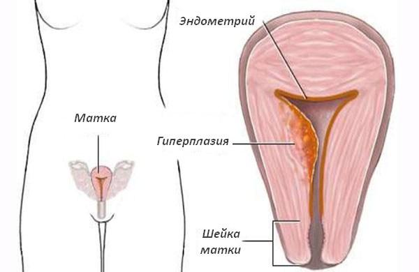 Выскабливание полости матки