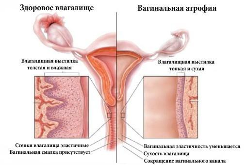 Чешутся половые губы