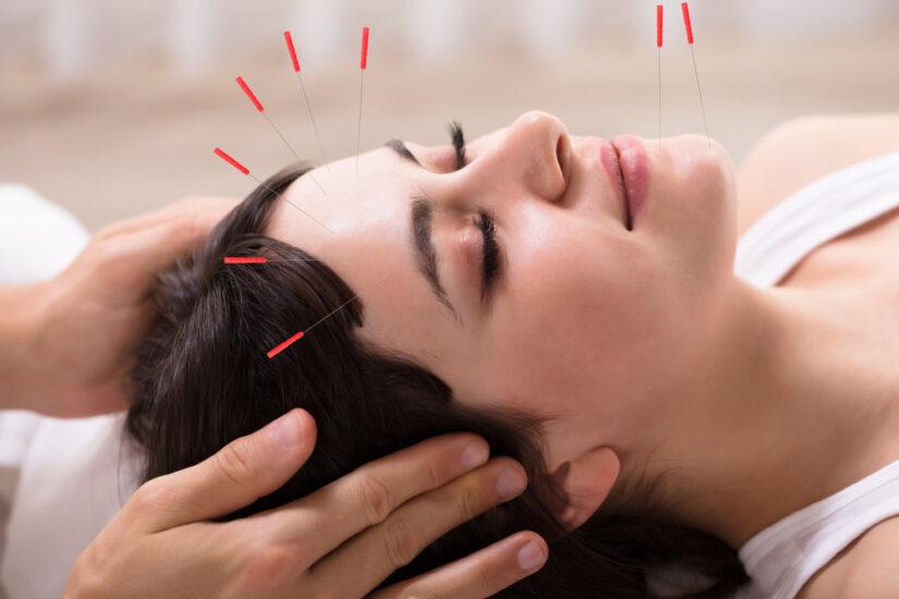Иглоукалывание в лечение бесплодия
