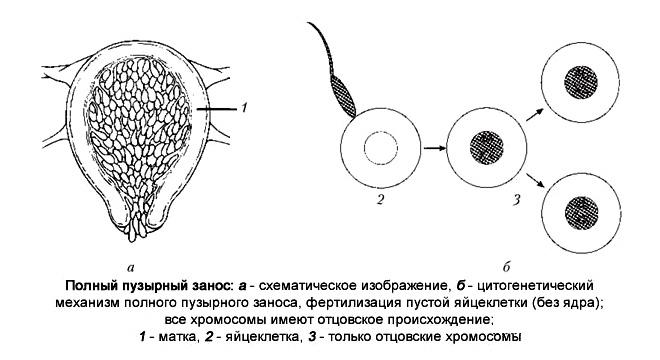 механизм развития пузырного заноса
