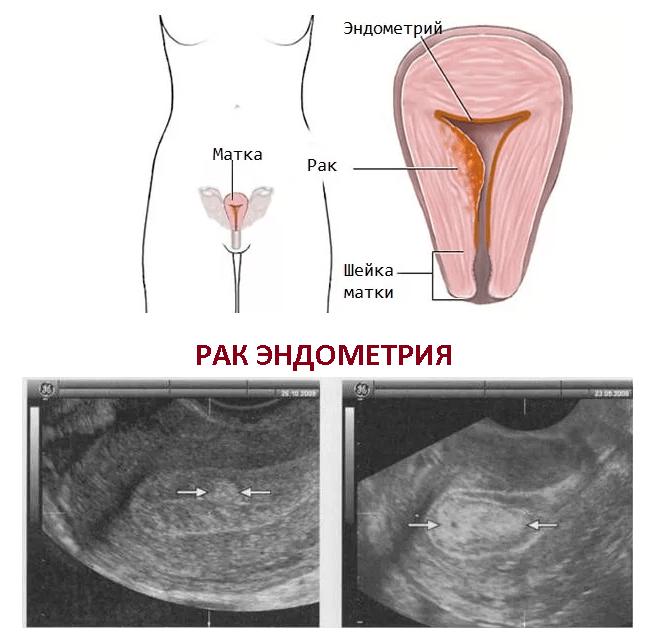 опухоль эндометрия матки