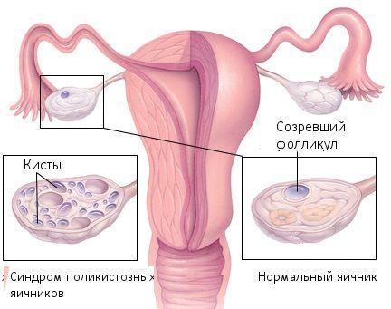 Фолликулостимулирующий гормон