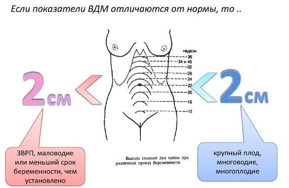 размеры матки при беременности