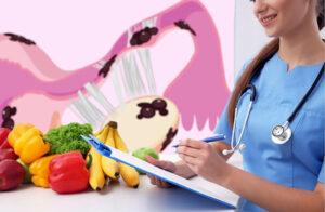 Диета при эндометриозе
