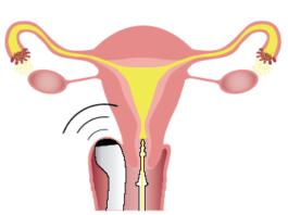 Проходимость маточных труб