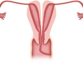Двурогая матка симптомы и бпланирование беременности