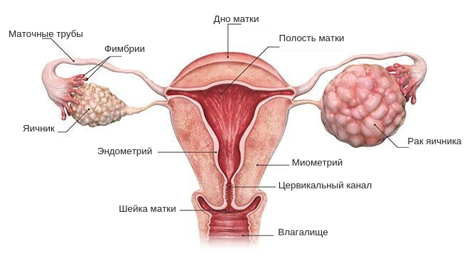 опухоли яичника