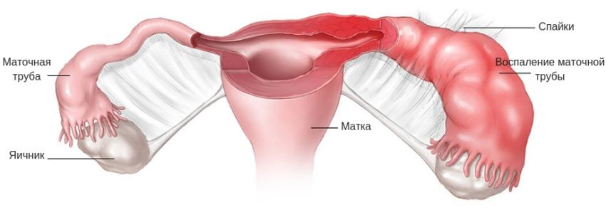 воспаление маточной трубы