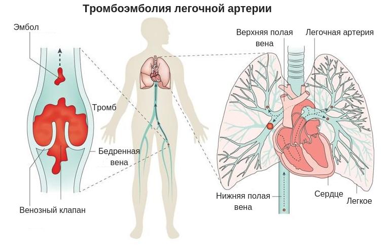 тромбоэмболия легочной артерии после операции